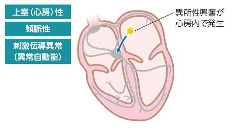 Apc 心電図